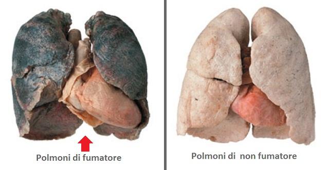 - NOTIZIE - Arriva sul mercato il farmaco miracoloso per ripulire i polmoni dei fumatori