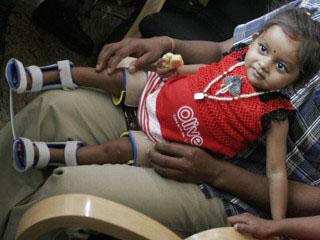 lakshmi-tatma-takes-first-steps-leg-brace