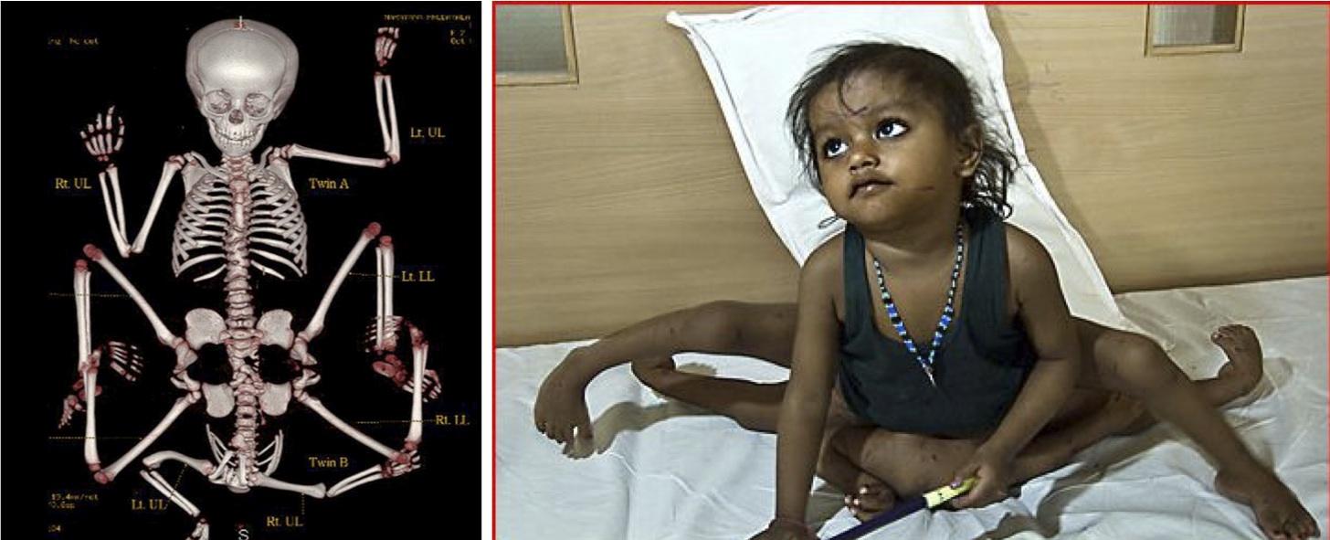 India Bimba Nata Con 4 Braccia E 4 Gambe Foto